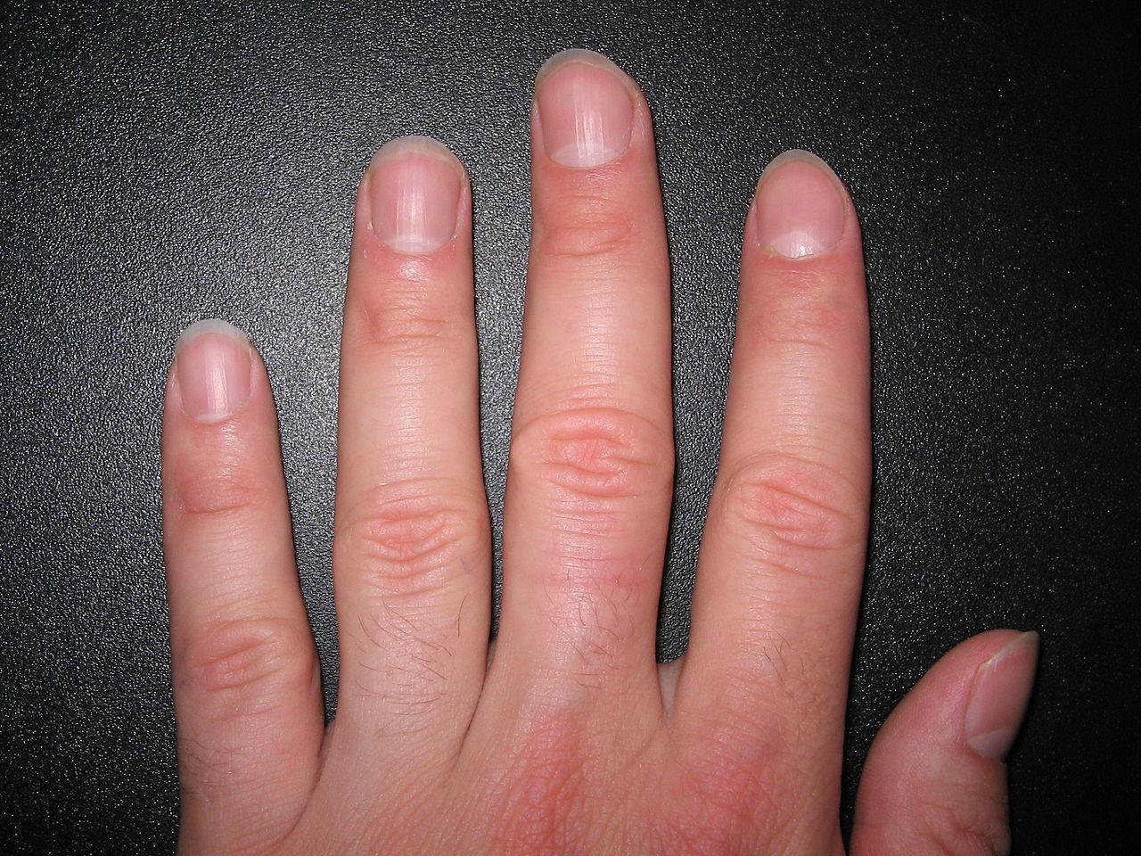 Как узнать о здоровье по ногтям фото